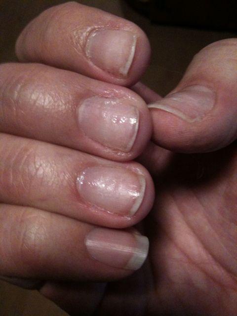 a New Nail